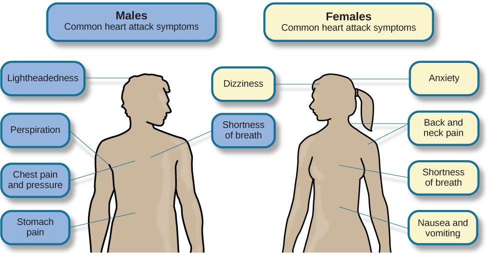 A figure showing outlines of the male and female bodies indicates common heart attack symptoms for each sex. For males, these include lightheadedness, perspiration, chest pain and pressure, stomach pain, and shortness of breath. For females, these include dizziness, anxiety, back and neck pain, shortness of breath, nausea and vomiting.
