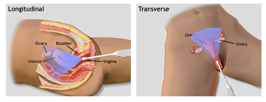 transvaginal_scan_positions_arms_chap4.3